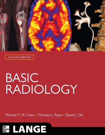 basic radiology 2nd edition pdf radiology pinterest radiology