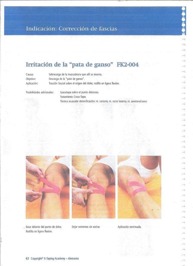 Iénz Conecciétt Le Fascias Irritacién De 1a Pata De Ganso Fk2 004 T Causa Sobretarga De La Musculatura Que A Kt Tape Neuro Tape