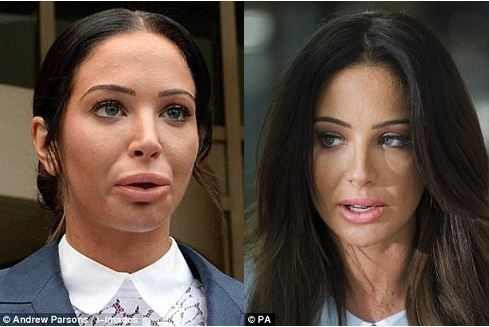 wrong lips Plastic surgery gone