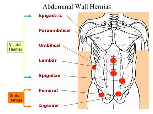 Abdominal Wall Hernias Ventral Hernia Jpg 500 374 Medical Knowledge Family Nurse Practitioner Umbilical Hernia
