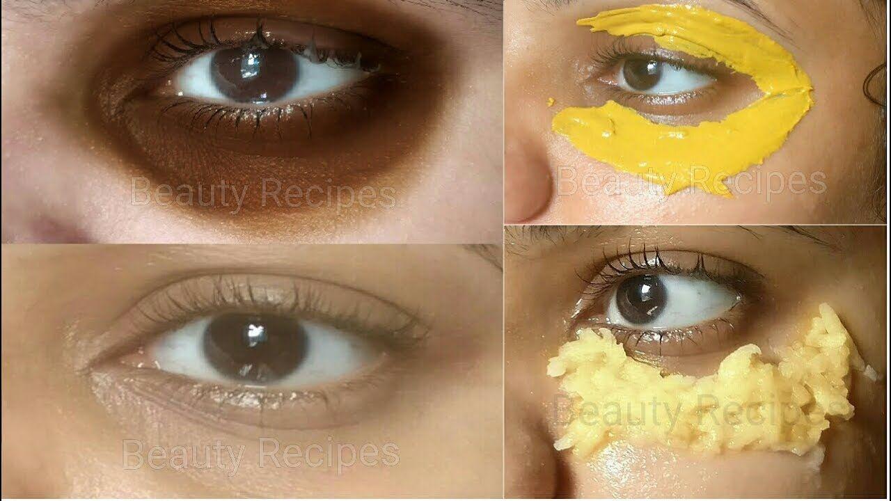 Remove DARK CIRCLES in 5 Days, Under Eye WRINKLES, Eye