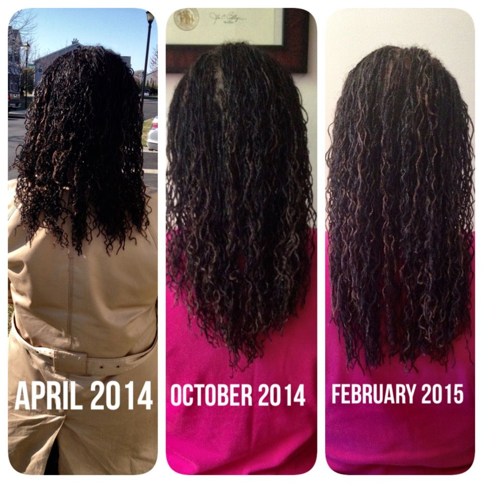 Microlocs Micro Braidlocs With Extensions 10 Months Of Growth Done