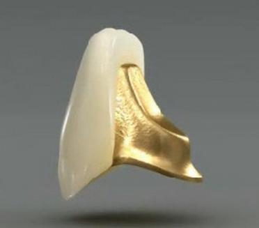 Porcelain Fused to Gold Dental Crown