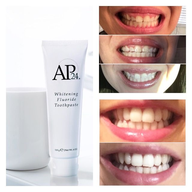 The Best Whitening Toothpaste No Peroxide No Bleach No Sugar