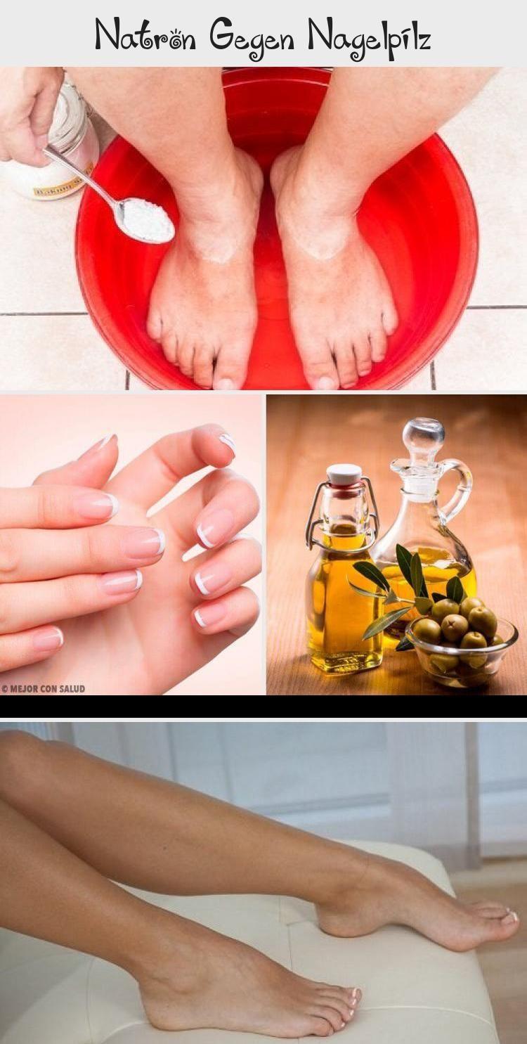Natron gegen Nagelpilz – Besser Gesund Leben #NagelpilzHausmittelNatron #Nagelpi…