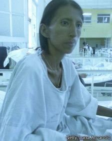 La indígena peruana que creía que estaba embrujada pero tenía sida - BBC Mundo - Noticias