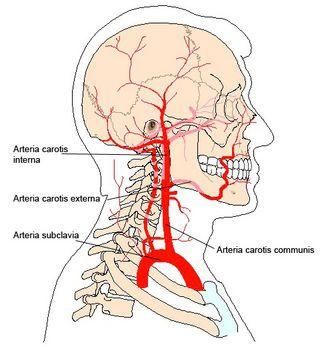 Arteria Carotis Interna
