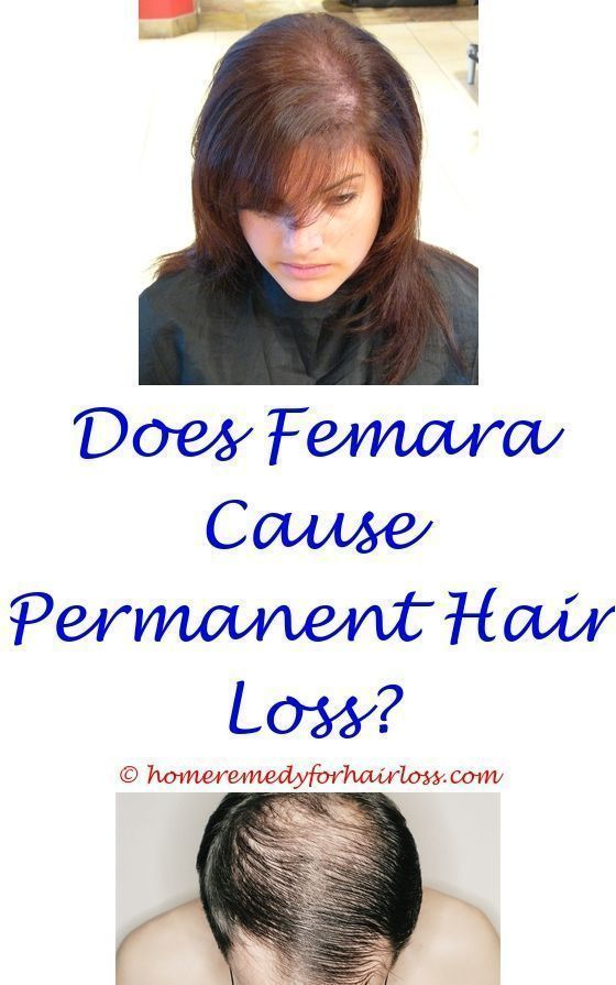 Does Saw Palmetto Cause Hair Loss