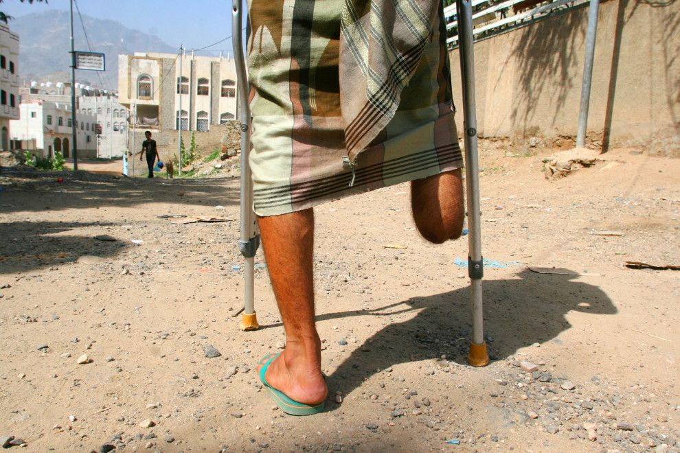 a man with an amputated leg walks on the street in the southwestern city of Taiz, Yemen. Taiz has witnessed some of the worst fighting since Yemen's civil war began in march of last year