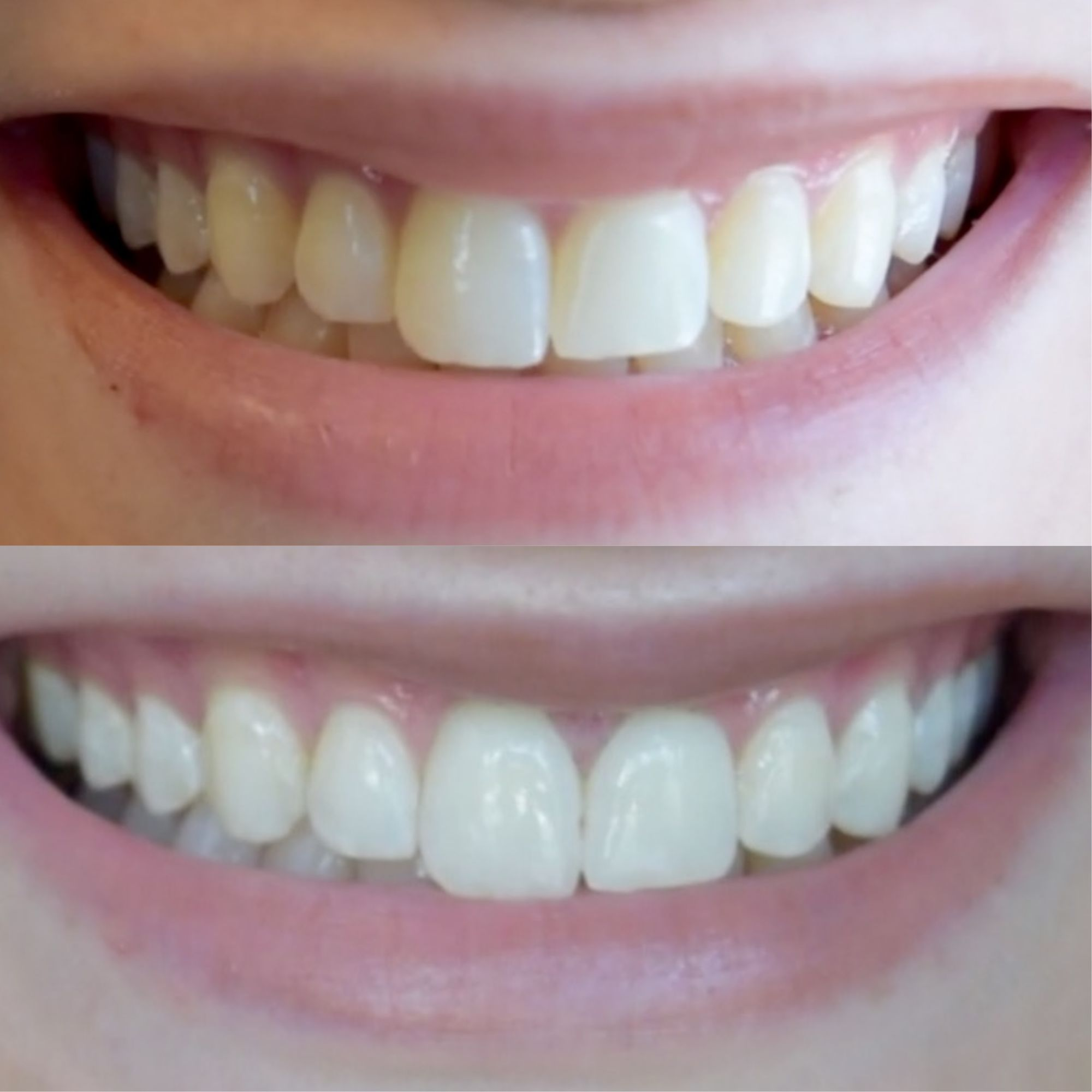 Colgate teeth whitening teeth whitening products pinterest teeth - Carbon Coco Teeth Whitening Activated Charcoal Tooth Polish