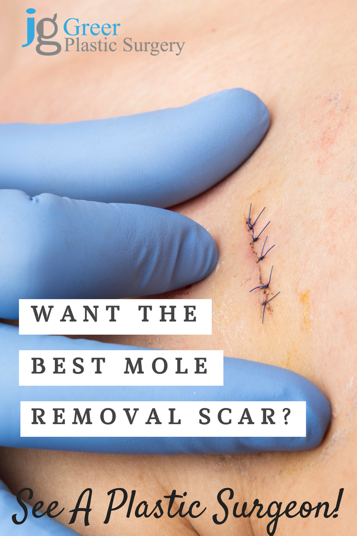 Want The Best Mole Removal Scar Mole Removal Facial Mole