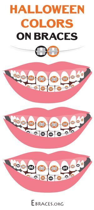 You Don't Have to Be a Genius to Choose Braces Colors   Braces ...