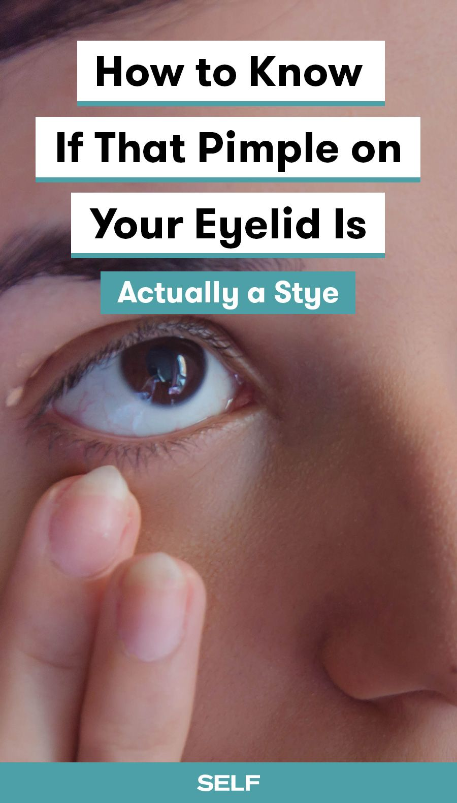 How To Get Rid Of Star On Your Eye