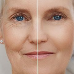 Effective home remedies for under eye wrinkles. Remove ...