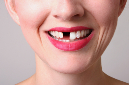 Steadfast Dental Crown Dentists #toothfairyiscoming