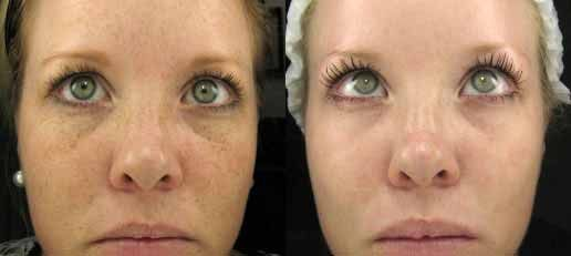 Limelight Facial Laser Facial Laser Botox Before And After