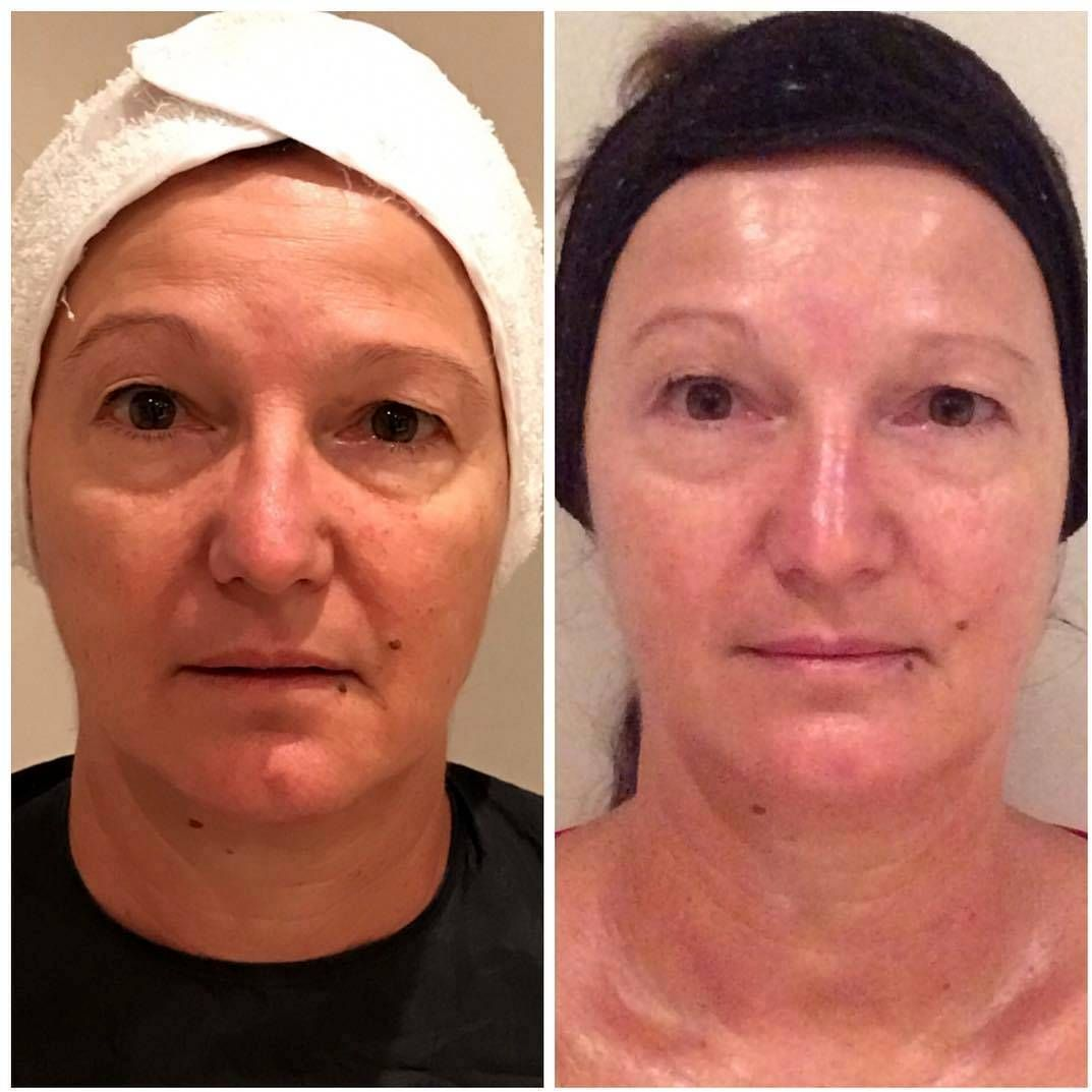 Thermage Before And After Photos Face (5) | Thermage