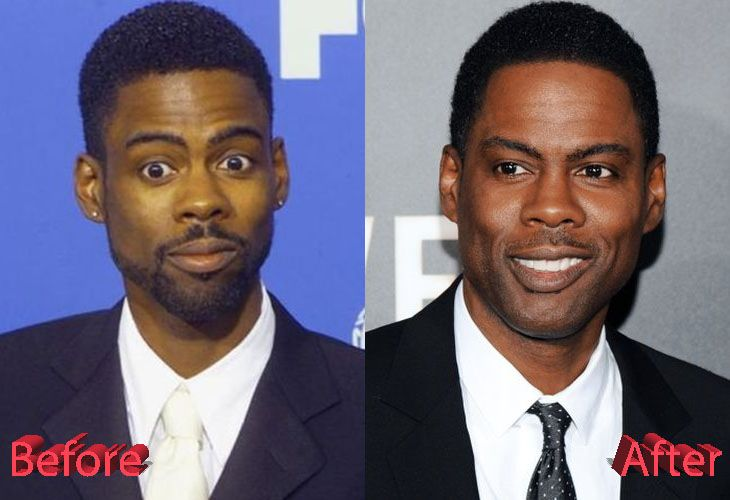 Chris Rock Before And After Plastic Surgery Celebrity Plastic