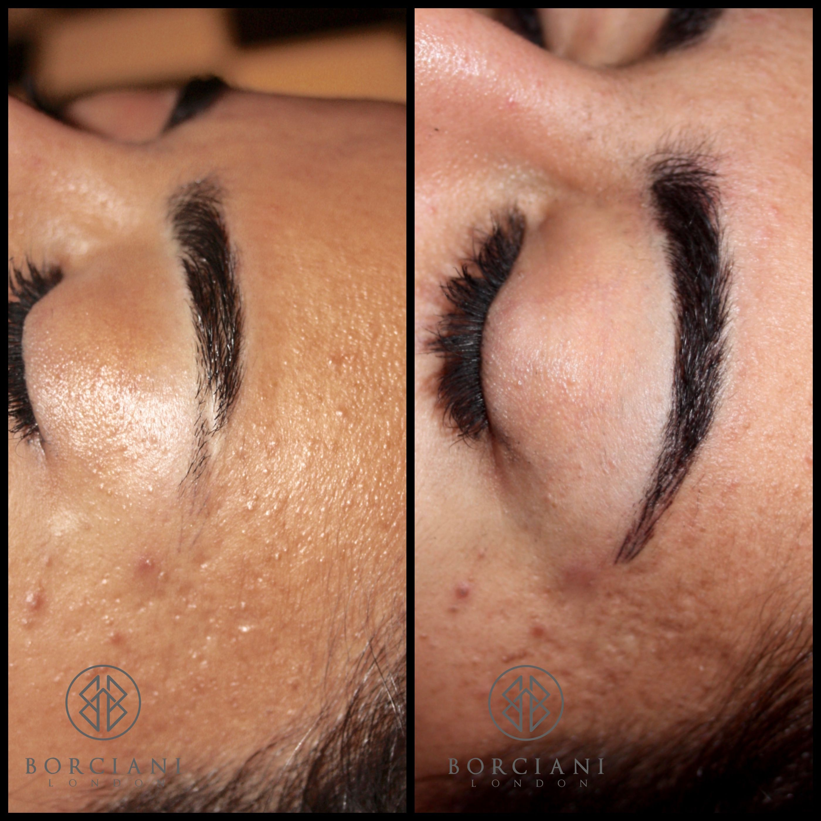 We covered this scar and elongated the brow to create a