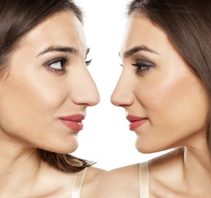 Finding the Right Facility for a Nose Job in Boston