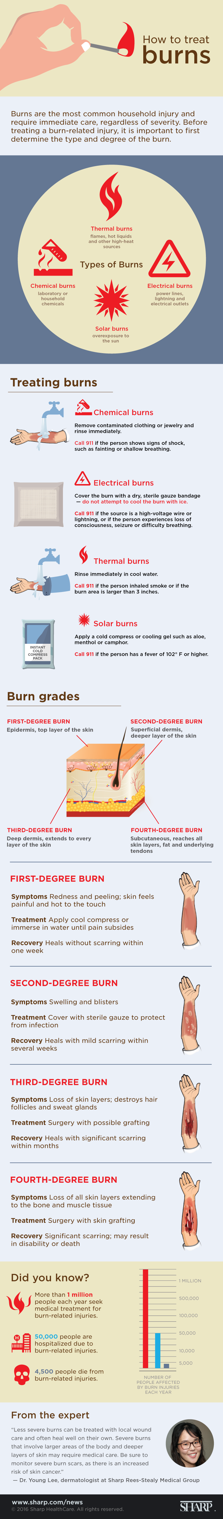 how to treat different types of burns