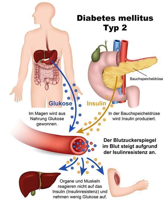 Lösungen zu: Diabetes mellitus – Zuckerkrankheit