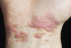 Lichen planus, a chronic dermatological disorder characterized by presence of recurrent rash on the mucous membrane or skin that is similar to lichens in appearance. The inflammation is initiated on account of an unknown cause.