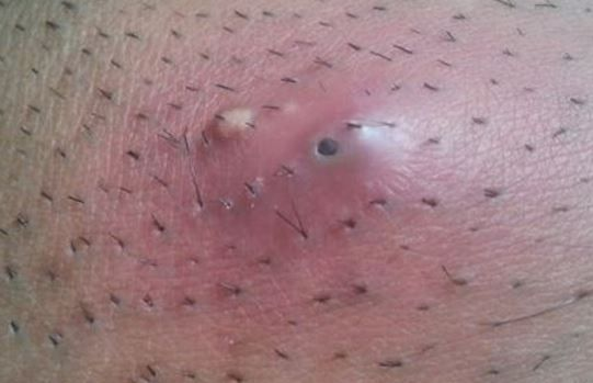 How common is shaving pubic hair