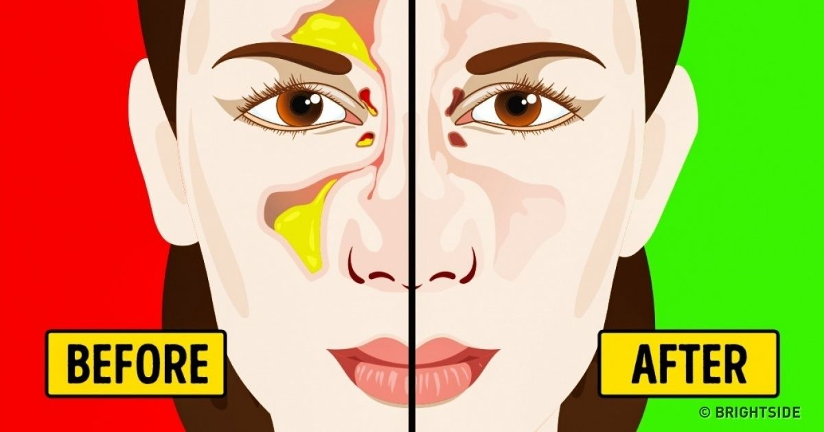 8ff805d5b44fd155053bb26df9e572ac - How To Get Rid Of Stuffy Nose On One Side