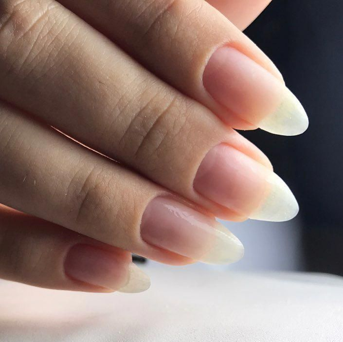 What causes fingernails to split down the middle? About 20 percent ...