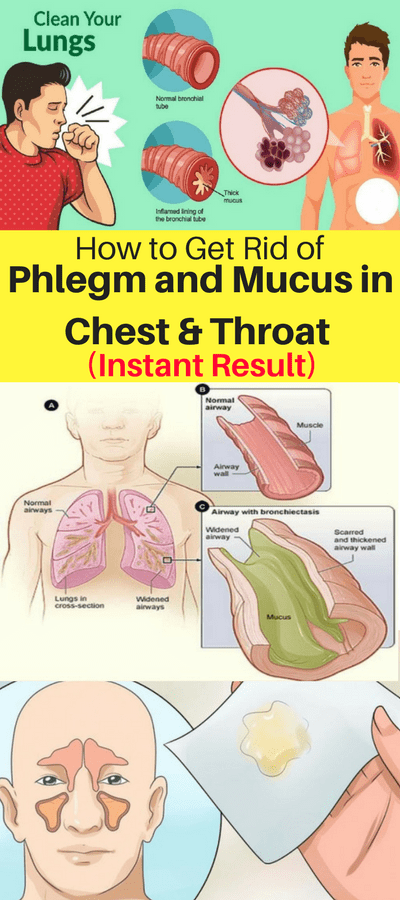 How To Get Rid Of Phlegm & Mucus In Chest & Throat (Instant Result)!!!  #lifestyle  #solution