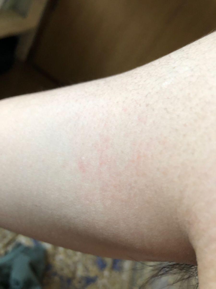麻疹 コリン 画像 蕁 性