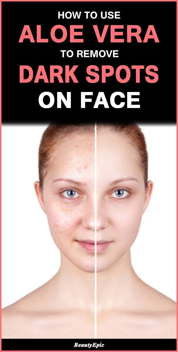 How To Get Rid Of Acid Spots On Your Face
