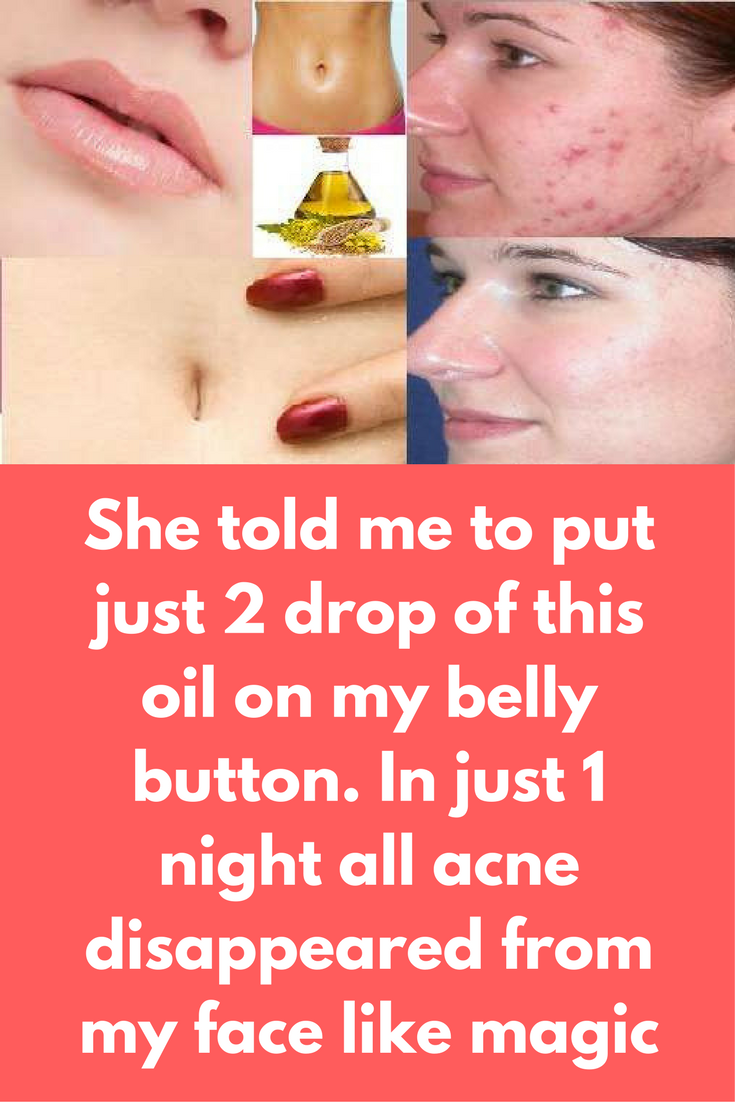 Pimple under nose piercing  She told me to put just  drop of this oil on my belly button In