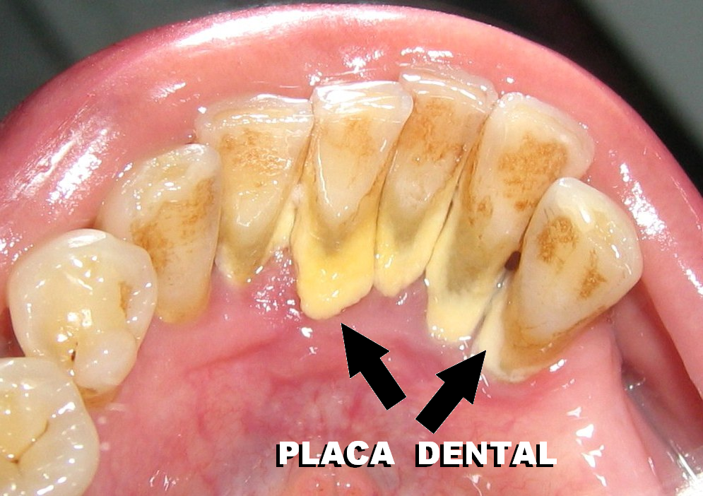 PLACA-DENTAL-ENFERMERIX