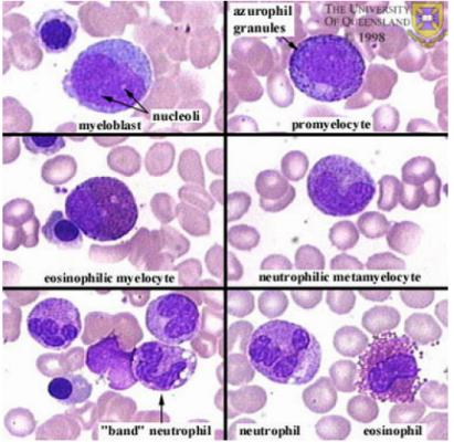 Promyelocyte Vs Myelocyte In The | Blood cells | Pinterest ...