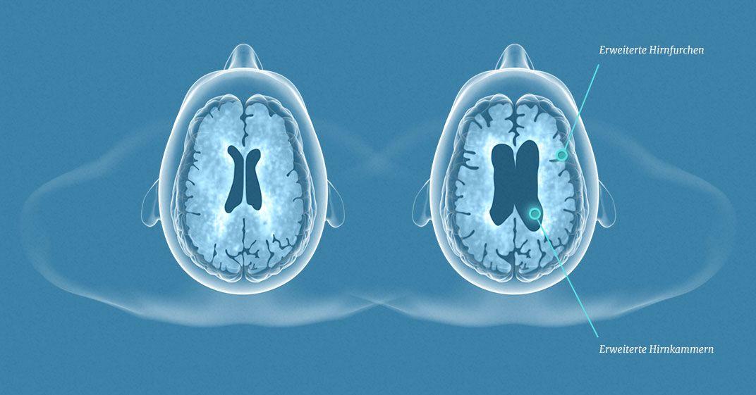 Hirnatrophie: Forschung bei multipler Sklerose (MS) | Pinterest