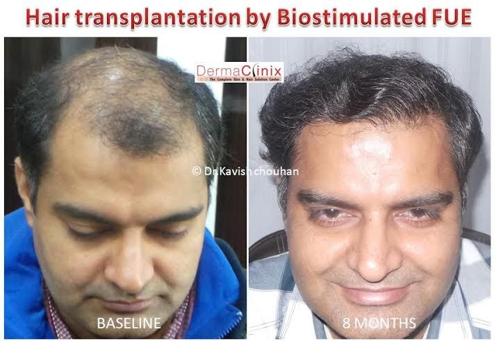 17 Best ideas about Best Hair Transplant on Pinterest | Fue hair ...