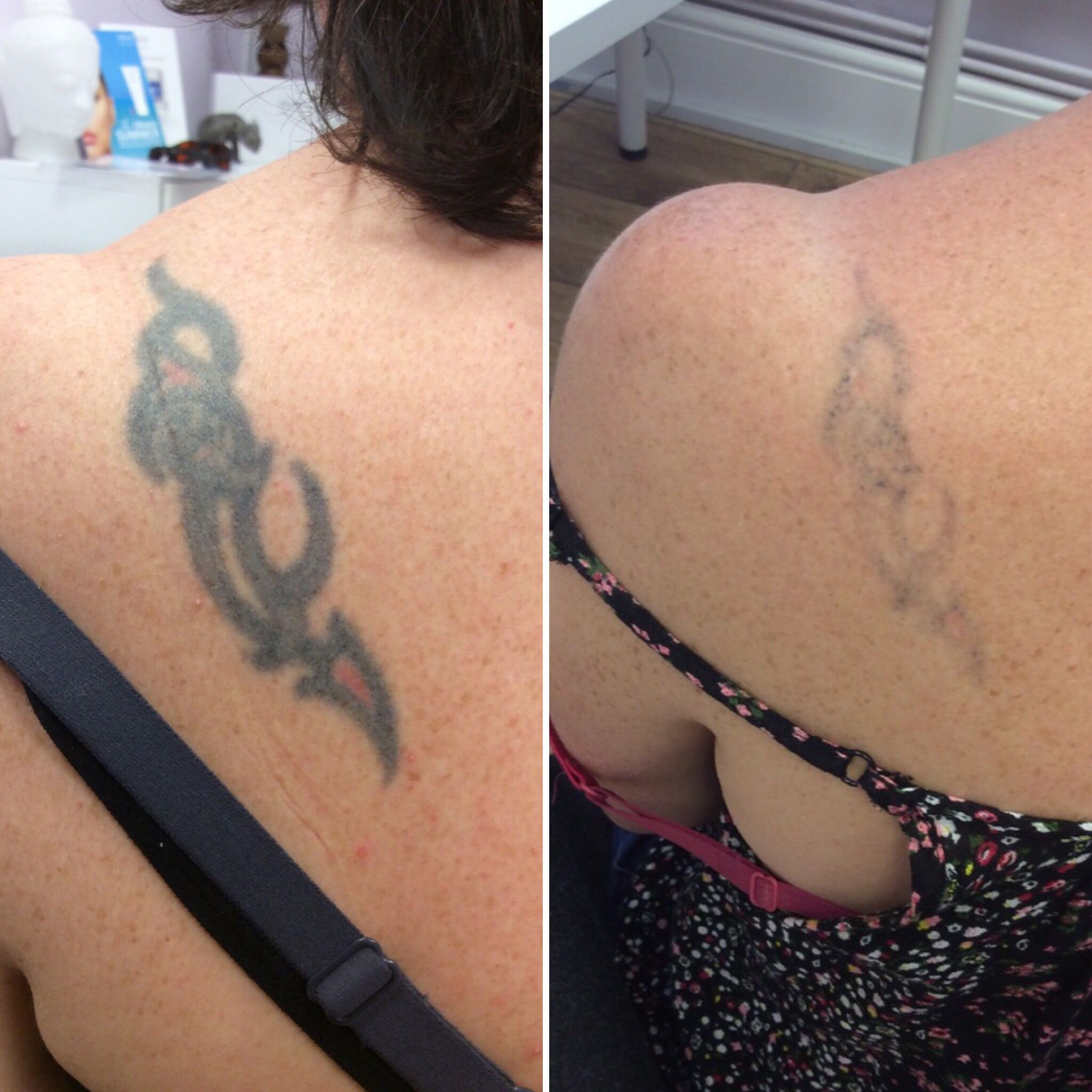 3 Treatments With The Picosure Laser Tattoos Tattoo Removal Laser Tattoo Removal