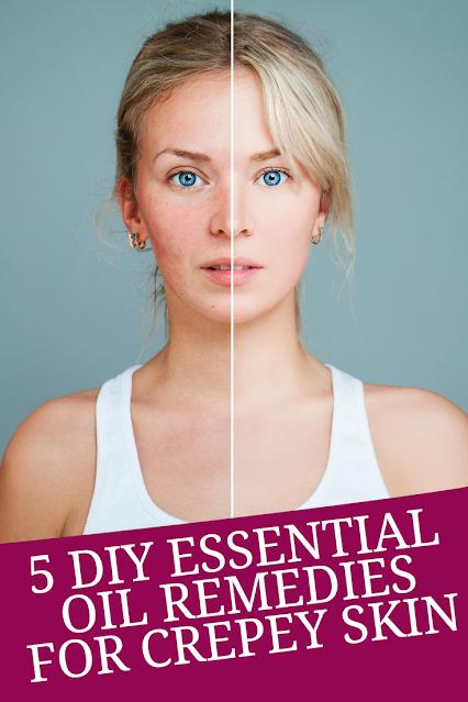 5 Diy Essential Oil Remedies For Crepey Skin In 2020 Crepey Skin Crepe Skin Skin Remedies
