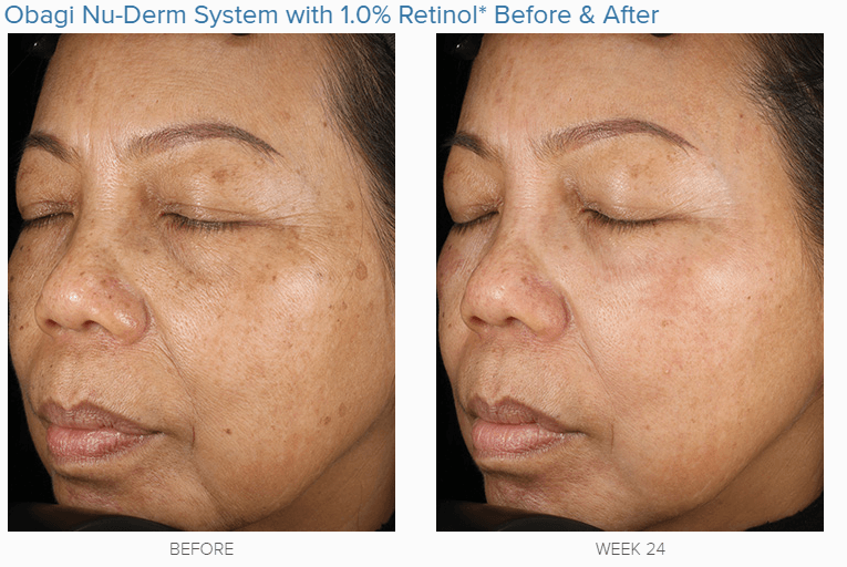 Obagi nu derm system before and after with retinol | forever