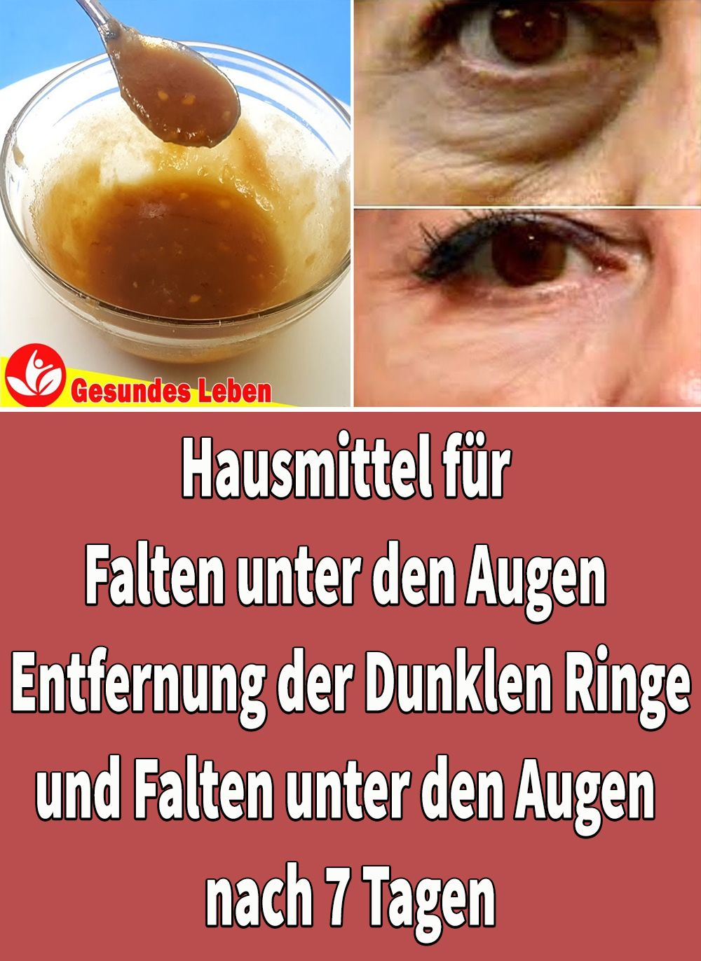 Photo of Home Remedies For Wrinkles Under The Eyes Dark circles & wrinkles …