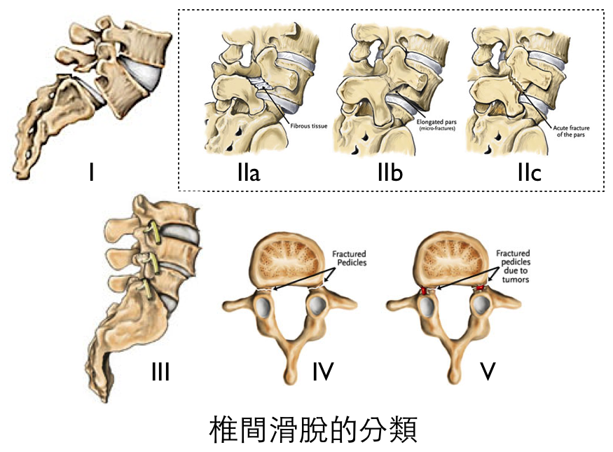 define spondylothesis We provide logical answers that make sense and help explain listhesis in a  manner  looking for an objective spondylolisthesis definition that makes sense.
