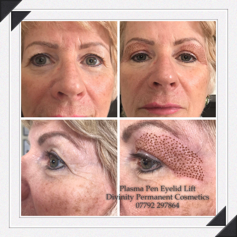 Plasma Pen Eyelid Lift Eyelid lift, Skin tightening