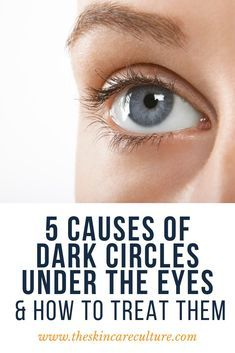 How To Get Rid Of Dark Circles Under The Eyes in 2020 ...