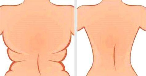 Sabe as costas gordas e largas?Ninguém gosta!Elas deformam o corpo e dificultam até o uso de sutiãs.O pior é que eliminar as gorduras dessa área é muito difícil e dieta saudável não é suficiente.