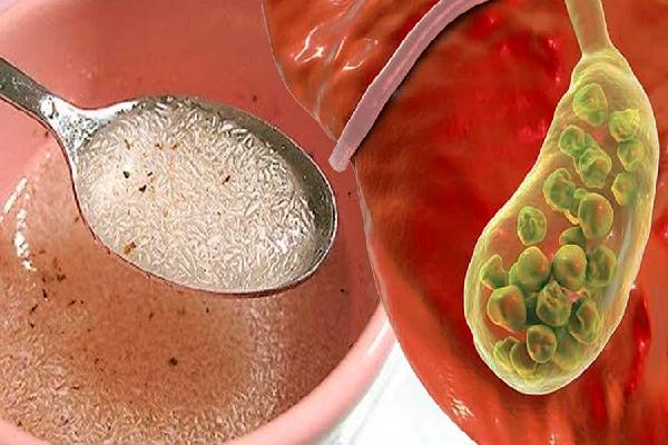 Secreto Revelado Para Sacar La Vesícula Y Limpiar El Hígado Ividasaludable Limpiar El Higado Graso Piedras En La Vesicula Dieta Para La Vesicula