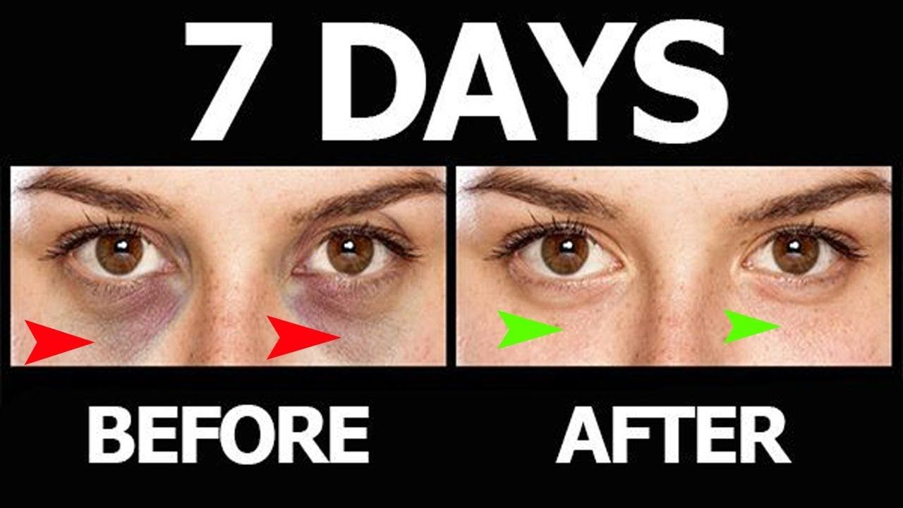 5 home remedies to get rid of circles under the eyes
