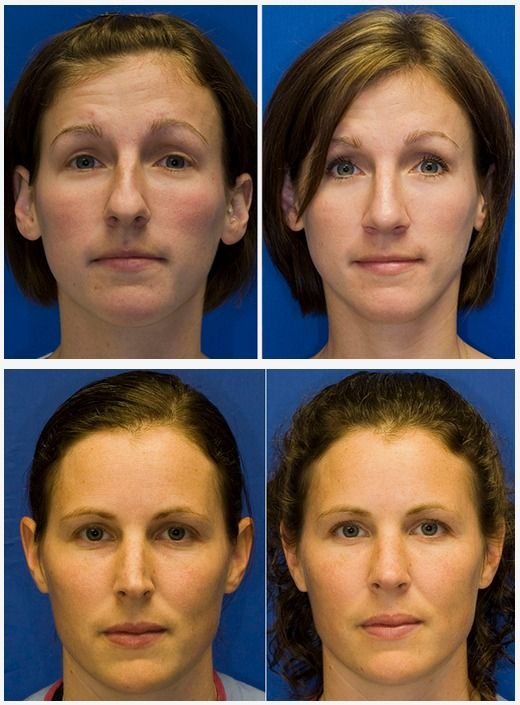 That photo facial treatment seattle
