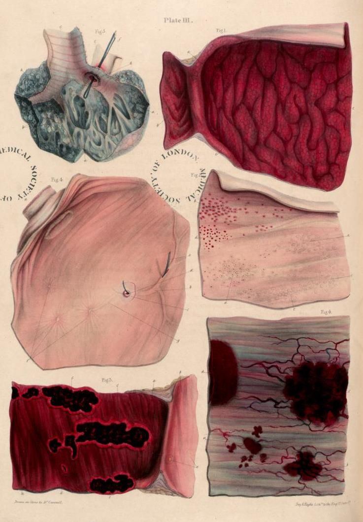 Sir Robert Carswell, plate from Pathological Anatomy, 1838 | MDD ...